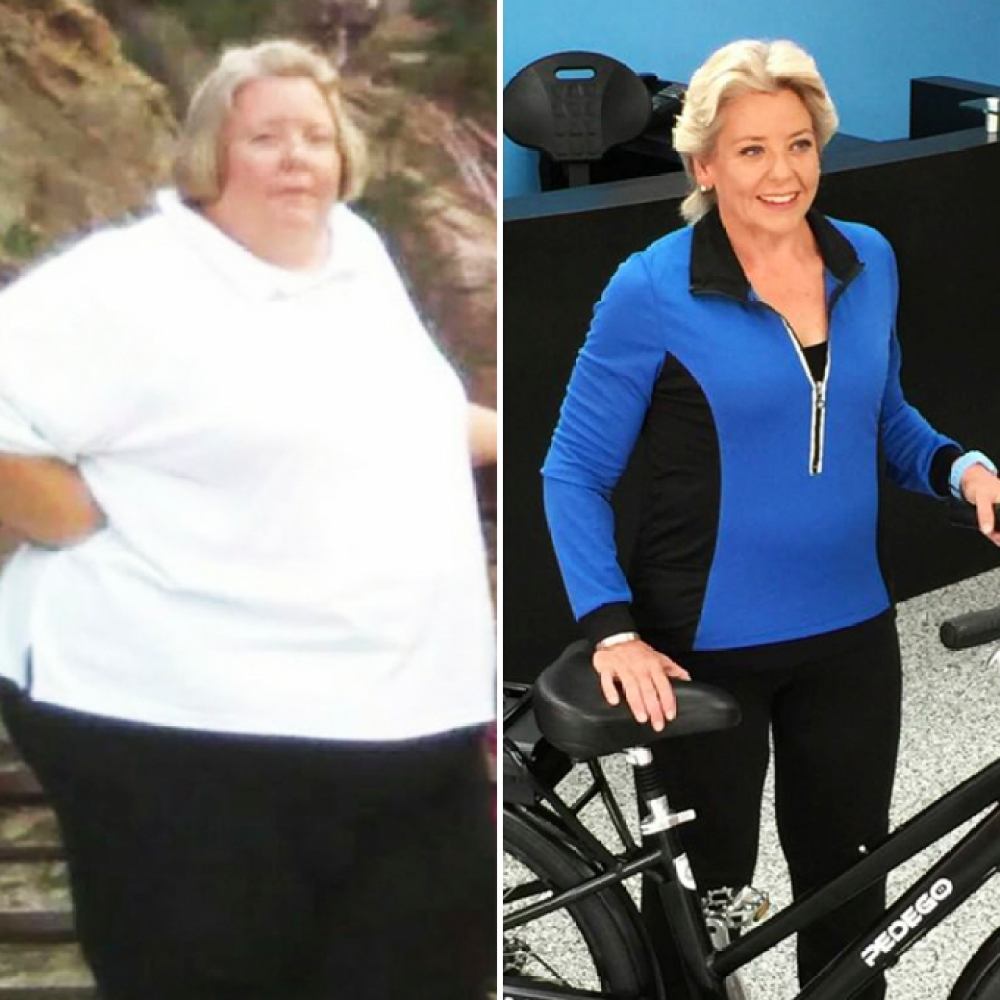 rhonda martin before/after