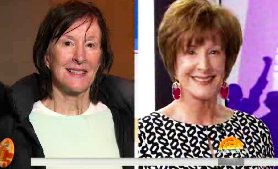 'today' makeover before and after