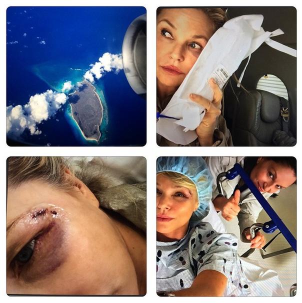 christie brinkley injury