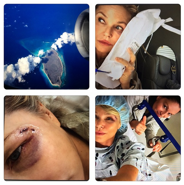 christie brinkley injury