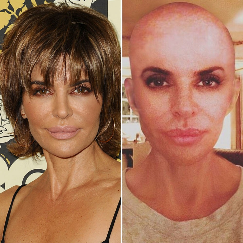 lisa rinna hair transformation