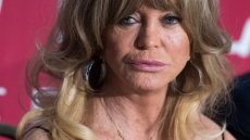 goldie-hawn-plastic-surgery