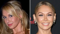 kym-johnson-plastic-surgery