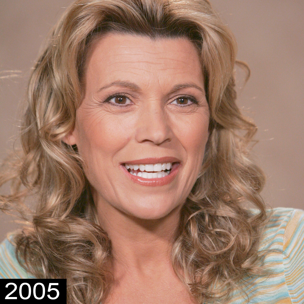 Vanna White Plastic Surgery – Secret Behind Her Youthful Look recommendations