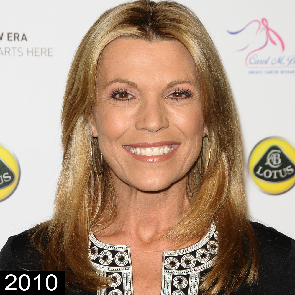 photo Vanna White Plastic Surgery – Secret Behind Her Youthful Look