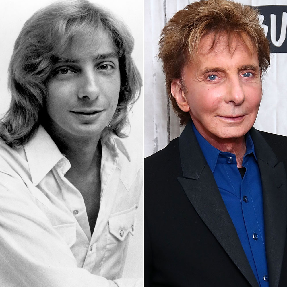 barry manilow plastic surgery getty images