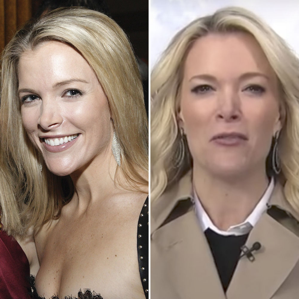 megyn kelly plastic surgery getty images