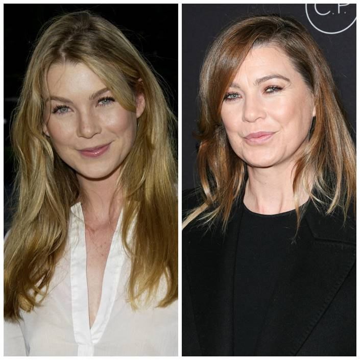 ellen pompeo plastic surgery then/now
