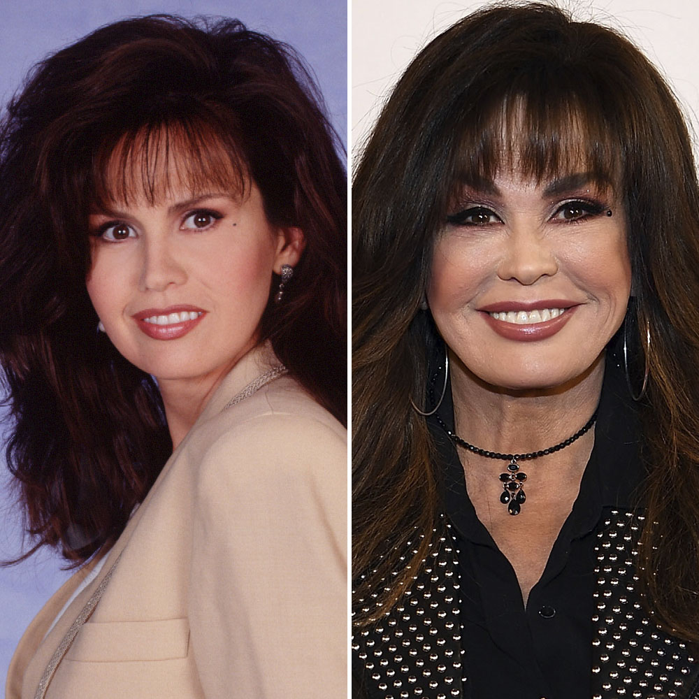 Has Marie Osmond Gotten Plastic Surgery? Our Experts Weigh In