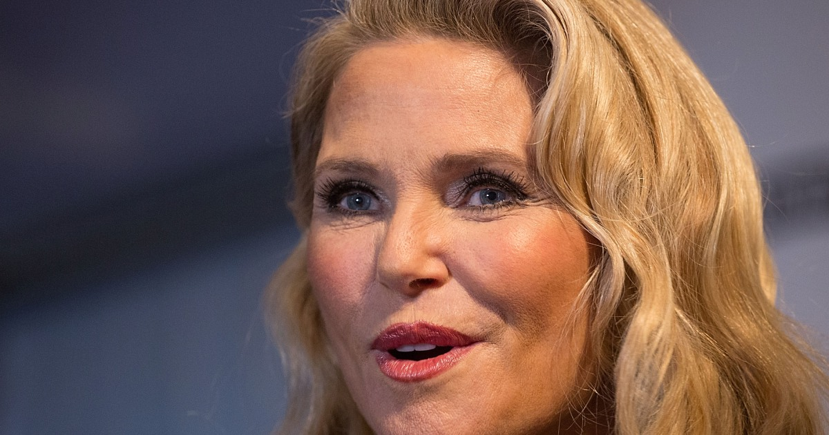 Christie Brinkley's Plastic Surgery Is Very Mild — Inside ...