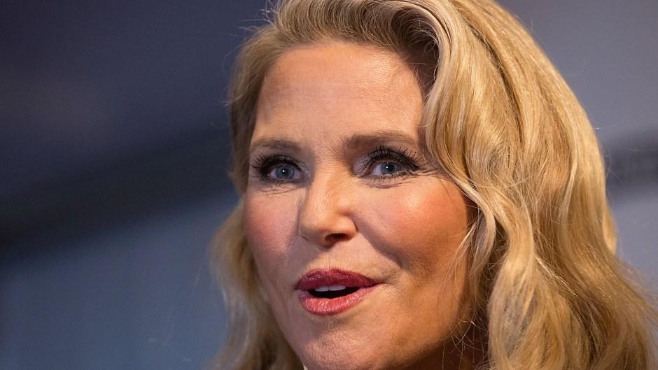christie-brinkley-plastic-surgery