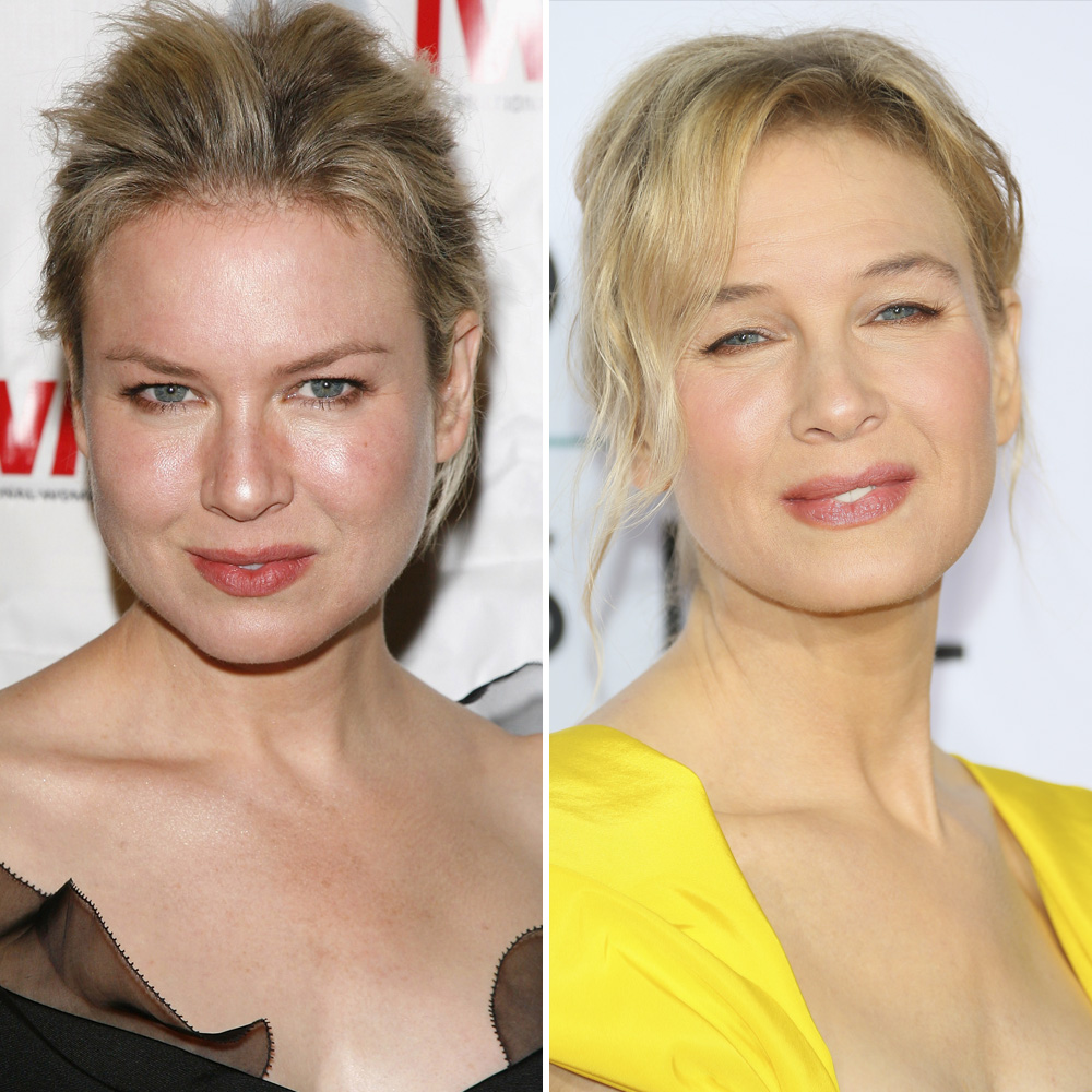 renée zellweger getty images