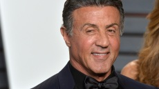 sylvester-stallone-plastic-surgery