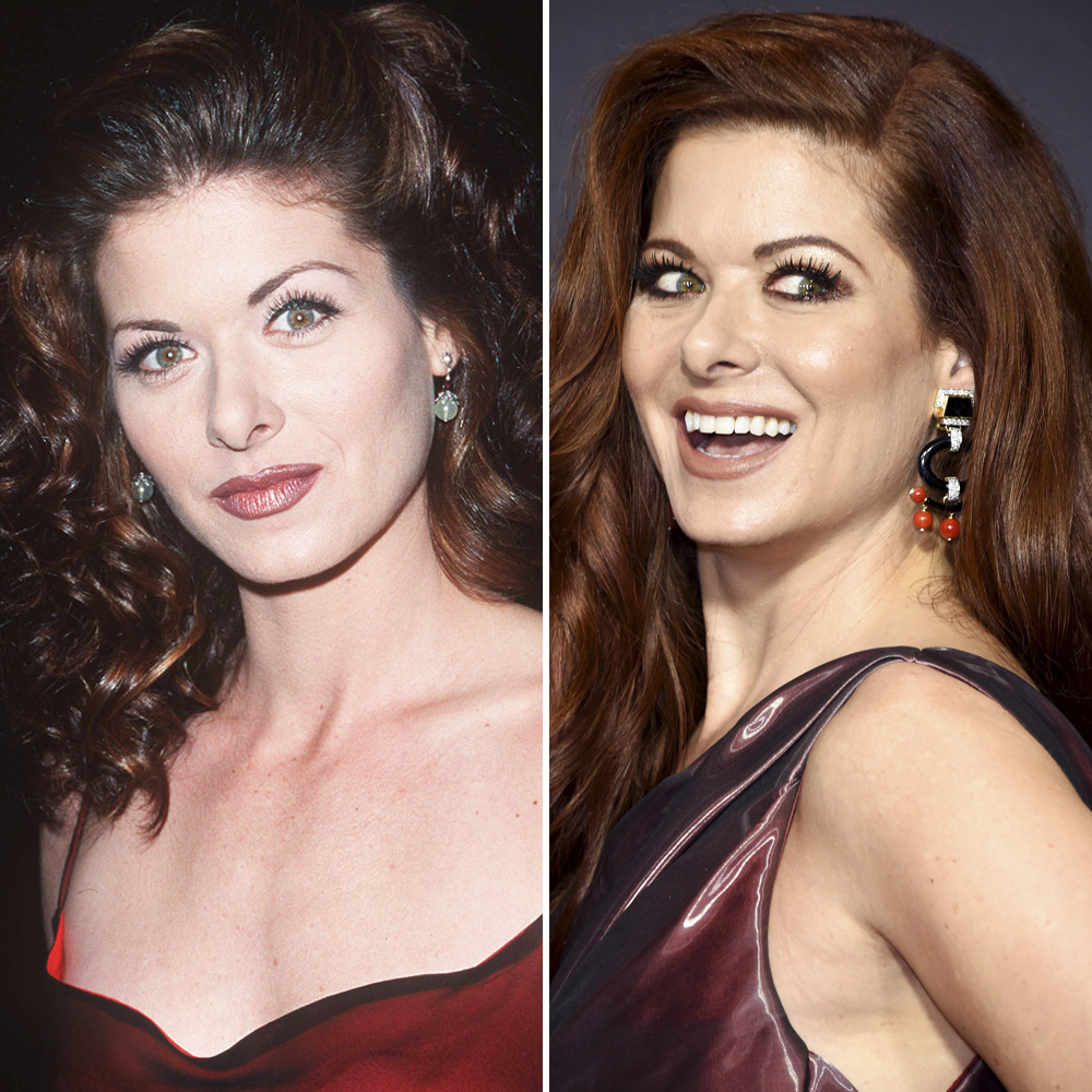 debra messing plastic surgery getty images