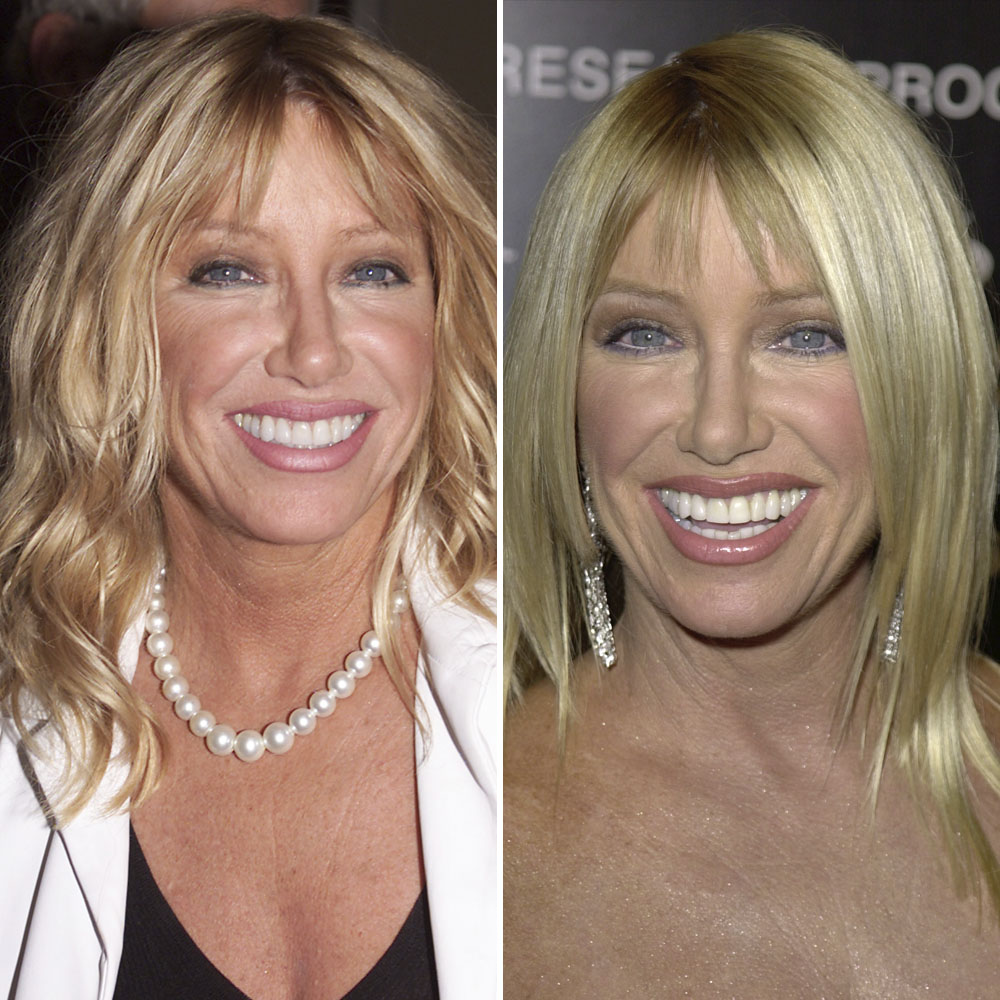 suzanne somers getty images
