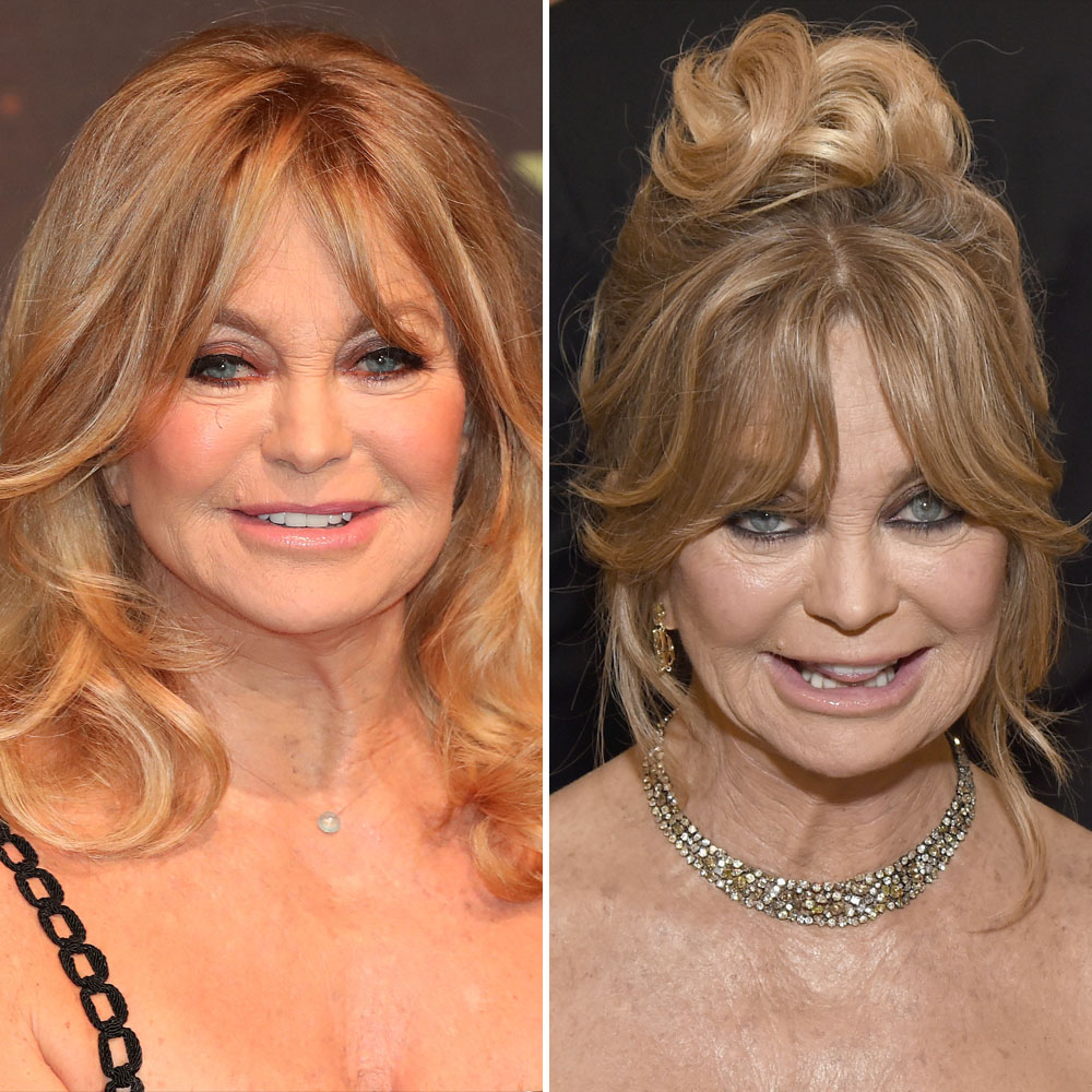 goldie hawn plastic surgery getty images