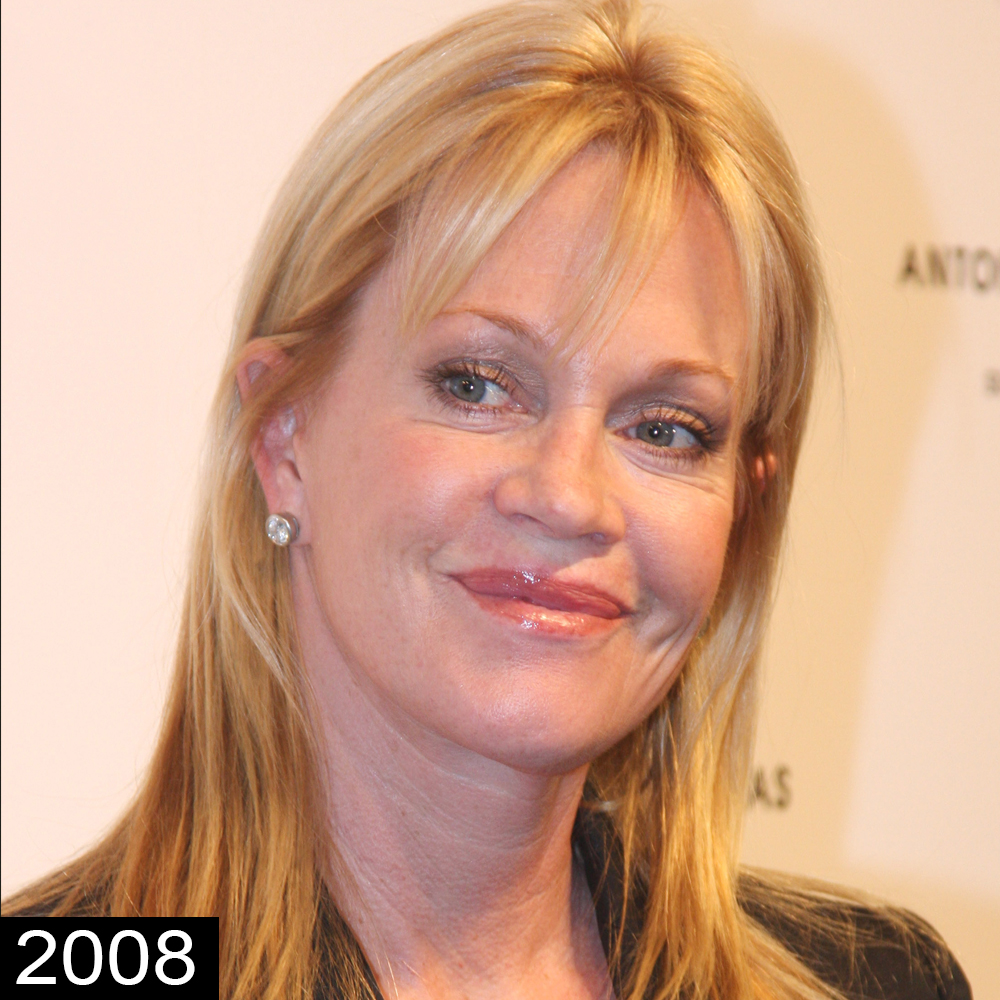 Melanie Griffith Plastic Surgery — See Her Face Transformation