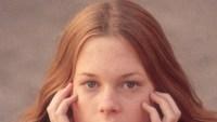 melanie-griffith-plastic-surgery-1975
