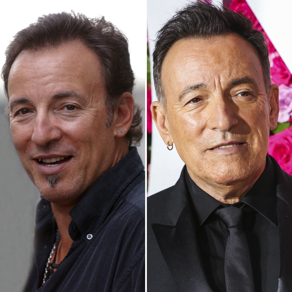 bruce springsteen plastic surgery getty images