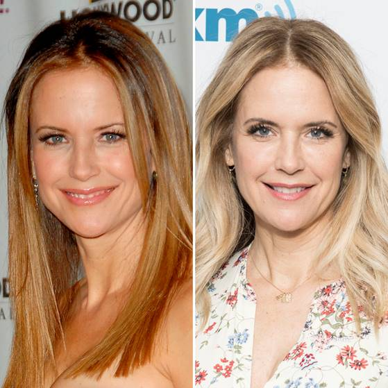 kelly preston plastic surgery getty images