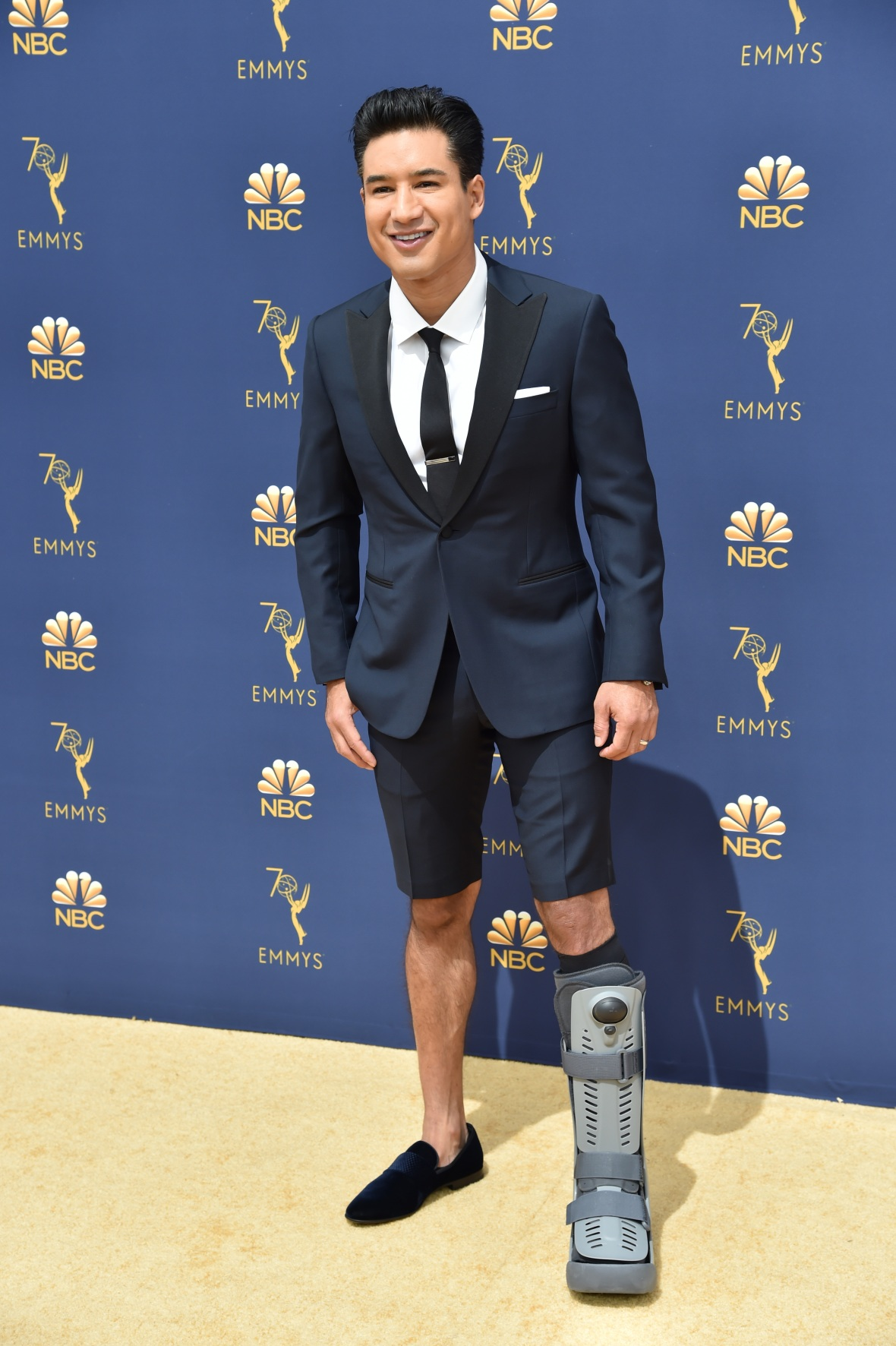 mario lopez leg injury