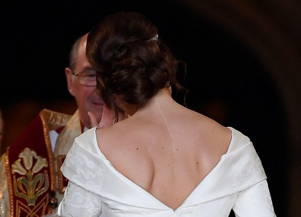 princess-eugenie-scar