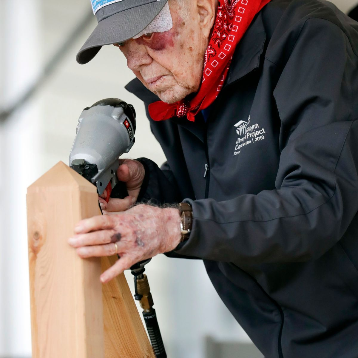 Jimmy Carter, 95, Attends Habitat for Humanity Project Despite Black Eye and Stitches From Fall