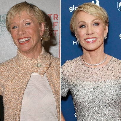 Barbara Corcoran Plastic Surgery